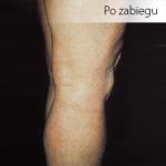 Zdjęcie zrobione po zabiegu skleroterapii