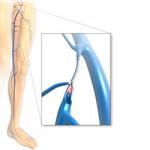 naczympolega-laserowaoperacja-zylakow